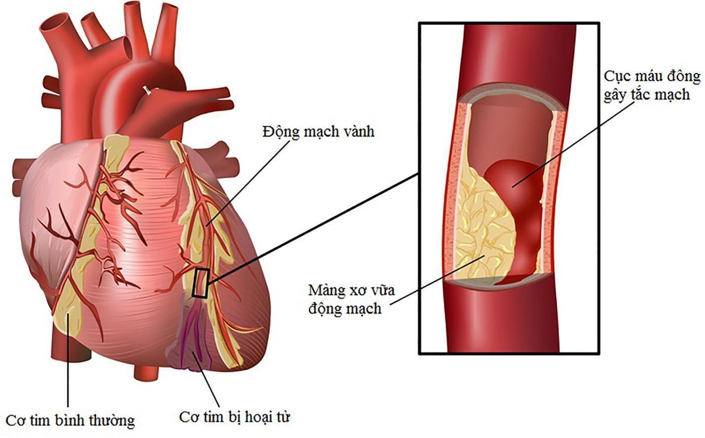 nhồi máu cơ tim là gì